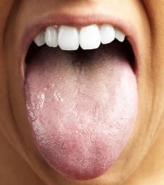 Regularly tongue brushing removes harmful plaque-causing bacteria.