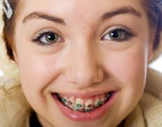 Dental braces are common among teenagers.