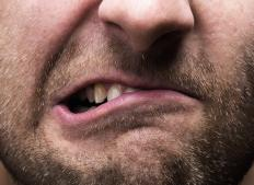 Teeth grinding may cause dental attrition.