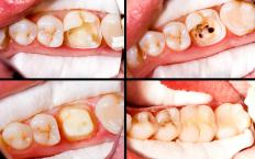 Posterior composites are used to fill cavities in molars.