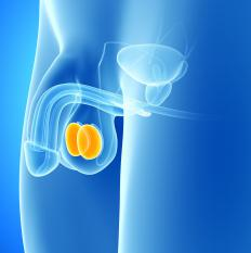 Rarely, testicular cancer can cause swelling of the testicles.