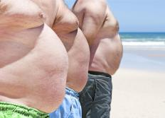 Three men with abdominal obesity.