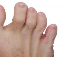 Toe jam is an accumulation of dead skin cells and other debris between toes.