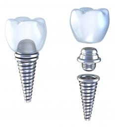 An illustration of a dental implant with a titanium abutment.