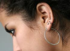 Keloids on the ear may be common after ear piercings.