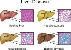 Types of liver disease, including fibrosis and cirrhosis, complications of hepatitis.