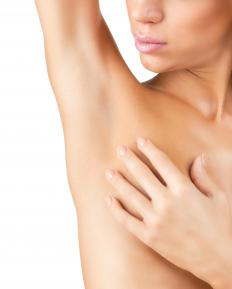 Adenopathic swelling can occur in the lymph nodes under the arms.