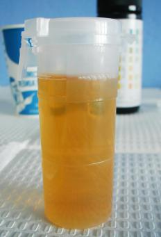 A urinalysis can help determine how well a kidney is functioning.