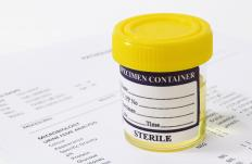 A urine sample.