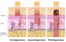 The three degrees of burns.