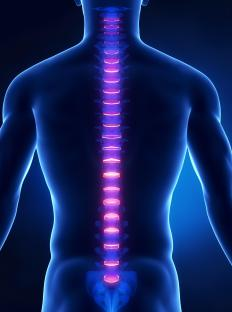 Hyperreflexia may be the result of a spinal cord injury.