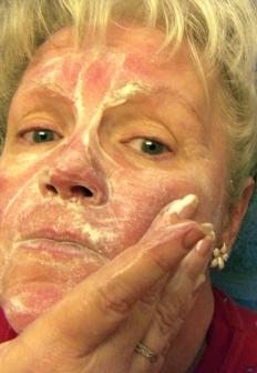 Sulfur-based over the counter rosacea treatment options are very popular.