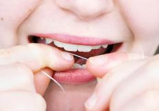 Continue flossing even if gingivitis is present in the gums.
