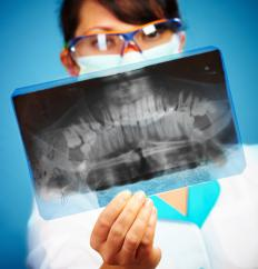 An X-ray may be taken of the jaw to diagnose jaw claudication.