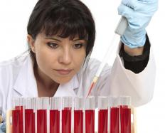 A blood test may be performed to diagnose monocytosis.