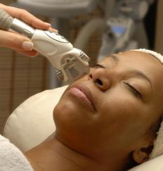 Electrolysis can be used to remove facial hair for a significant period of time.