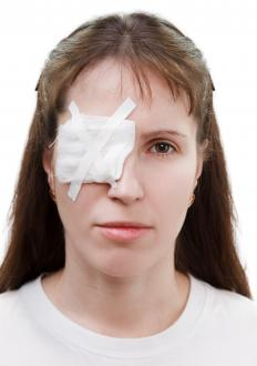 An eye patch may be used to treat microphthalmia to encourage the weaker eye to become stronger.