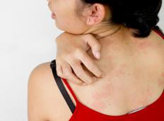 Diabetic eczema can produce dry, red patches of skin.