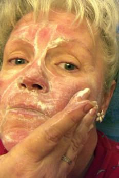 Skin disorders such as rosacea may cause redness of the nose.