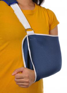 To avoid the formation of a clavicle bone lump, a sling can be used to help the bone heal properly.