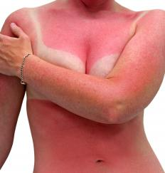 Excessive UV exposure can lead to skin cancer, a serious disease of the integumentary system.