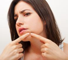 Blackheads may exhibit black pus that is caused by an infection in the pore.