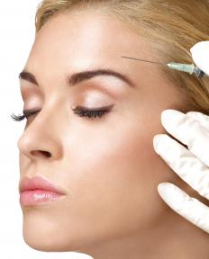 Botox injections have been used to eliminate wrinkles.