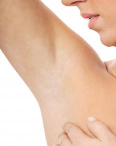 Pulled muscles may cause underarm pain.