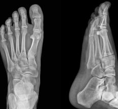 An x-ray can be used to examine broken bones.