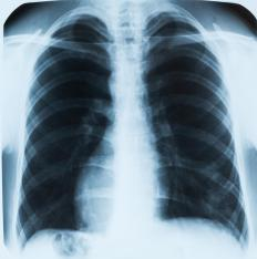 With chronic pneumonia, the lungs can appear obstructed on x-rays.