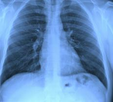 Asbestos causes serious health problems and can lead to lung cancer.