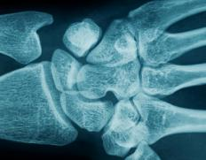 Treatment for a dislocated wrist includes a doctor working to get the bones back into alignment as soon as possible.