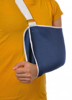 People who have had their arm in a sling seem to be slightly more at risk of adhesive capsulitis, also known as frozen shoulder.