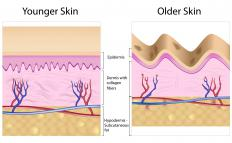 A diagram of younger and older skin showing the decrease in collagen in older skin. Many collagen-based products are designed to replace or boost the production of this protein.