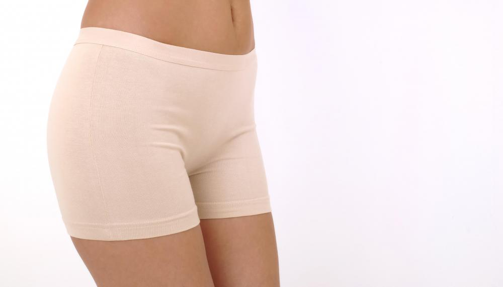 Slimming underwear can be worn to reduce the appearance of the mons pubis.