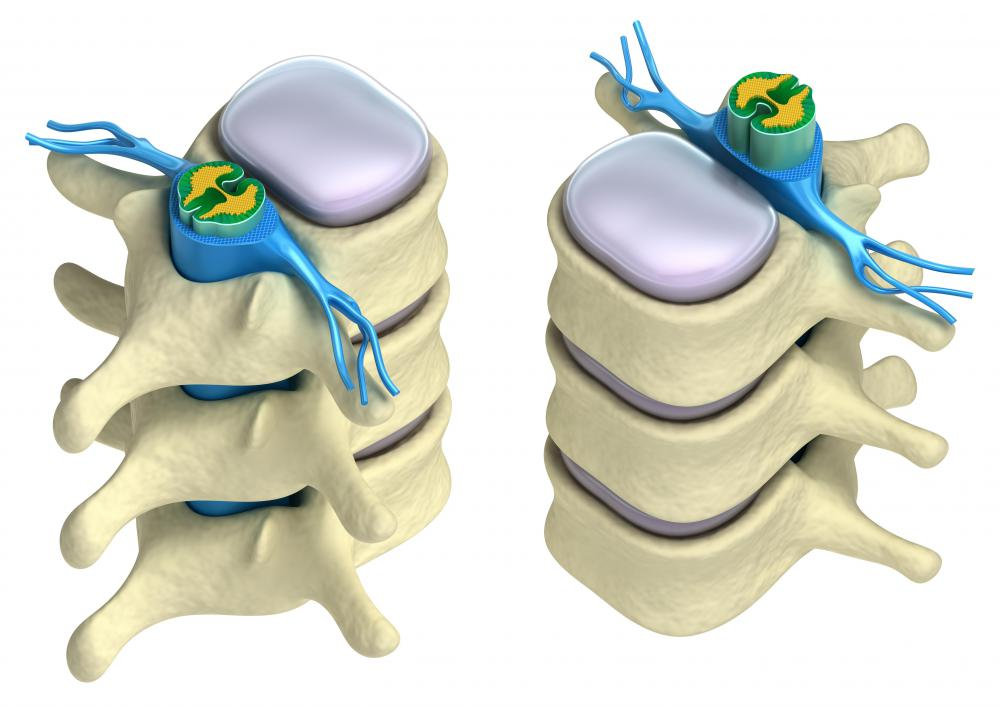 There are several methods for relieving pressure on the different parts of the spine.