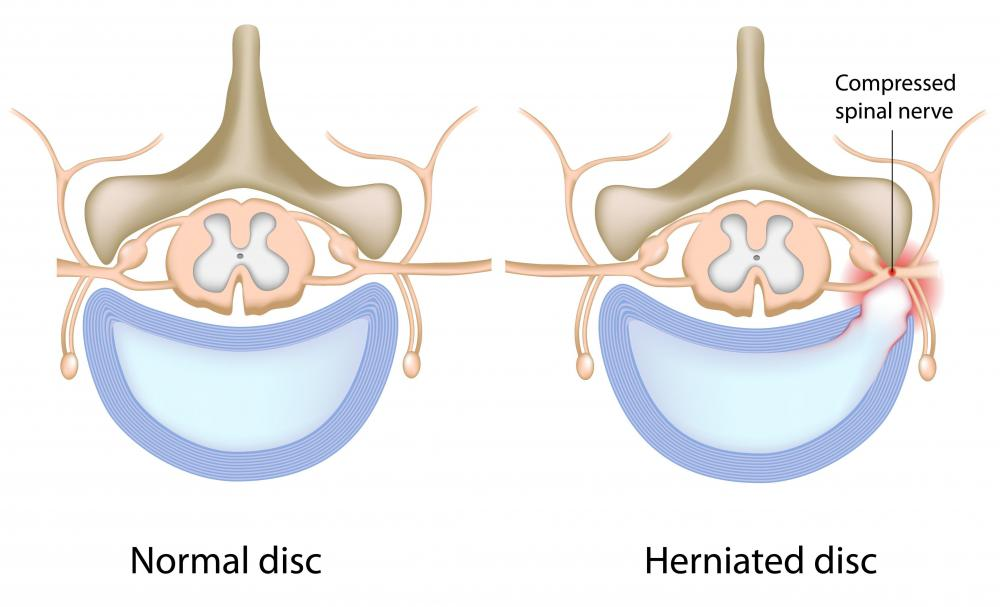 The pain from a herniated disc which pinches a nerve can be treated with muscle relaxers and pain relievers.