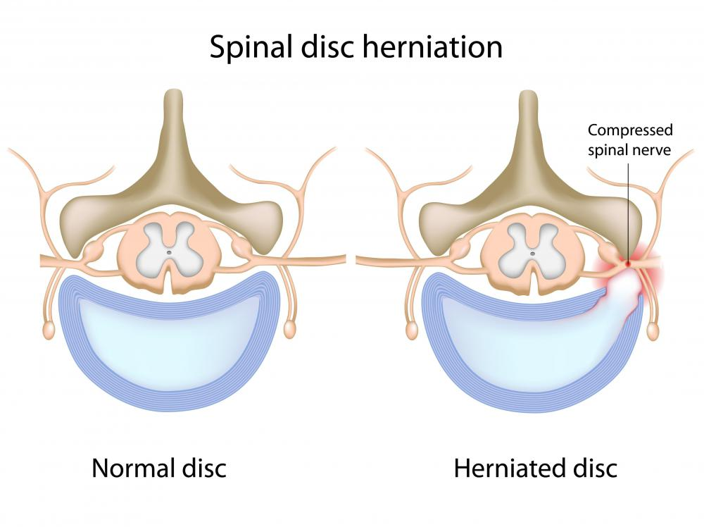 A healthy spine and a spine with a herniated disc, or disc protrusion.