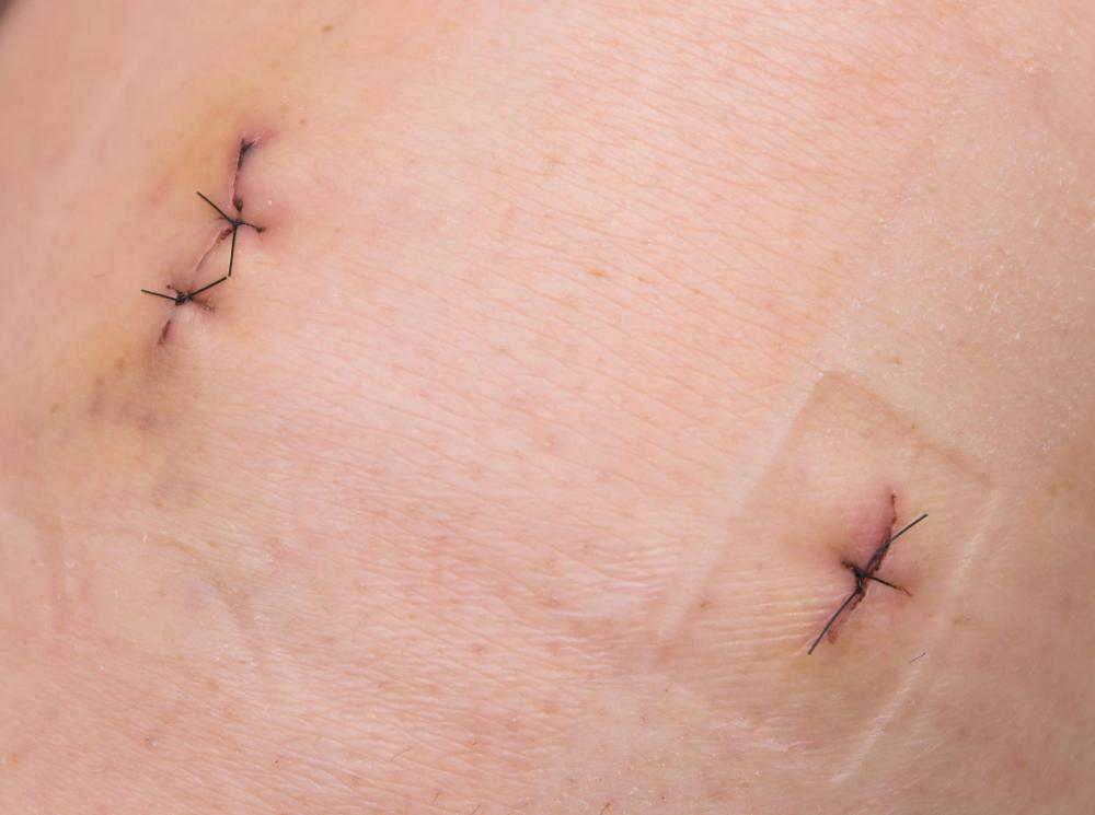 Skin hooks may be used if a patient requires stitches.
