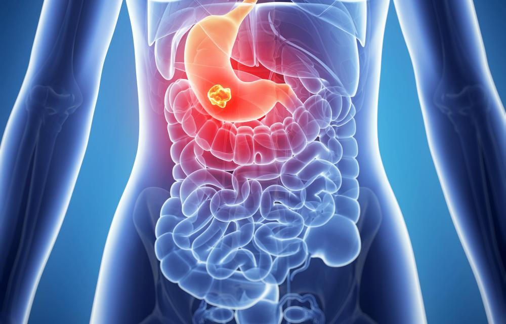 The stomach is a common location for a neuroendocrine tumor to develop.