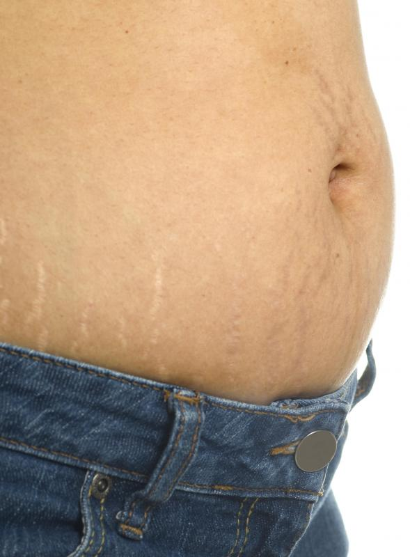 A tummy tuck after a c-section may eliminate stretch marks.