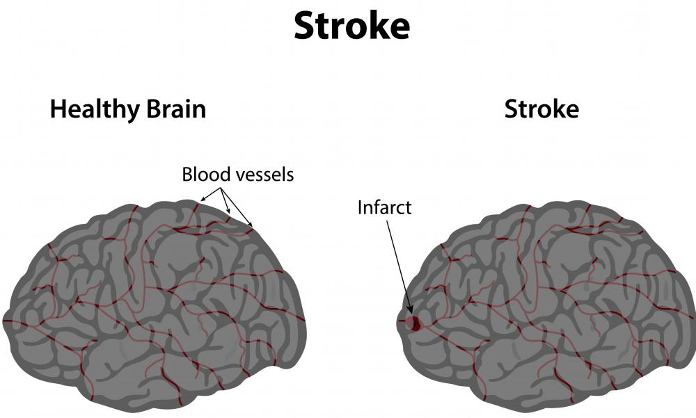 An infarct that occurs in the brain is a stroke.