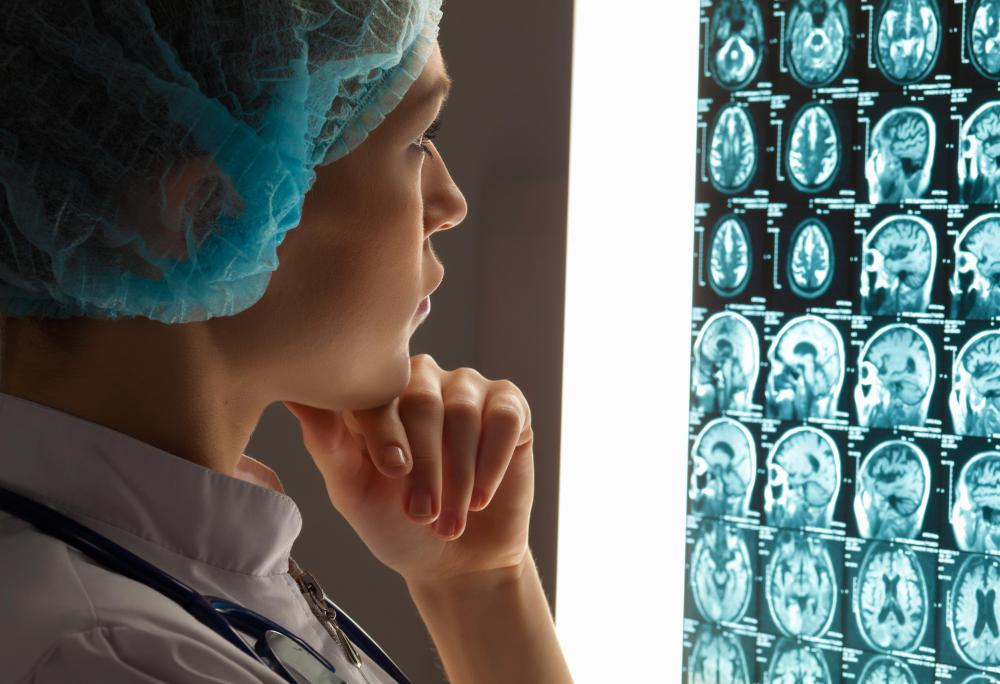 Neurosurgeons spend lots of time studying patients' files, analyzing MRI scans and other images of the brain.