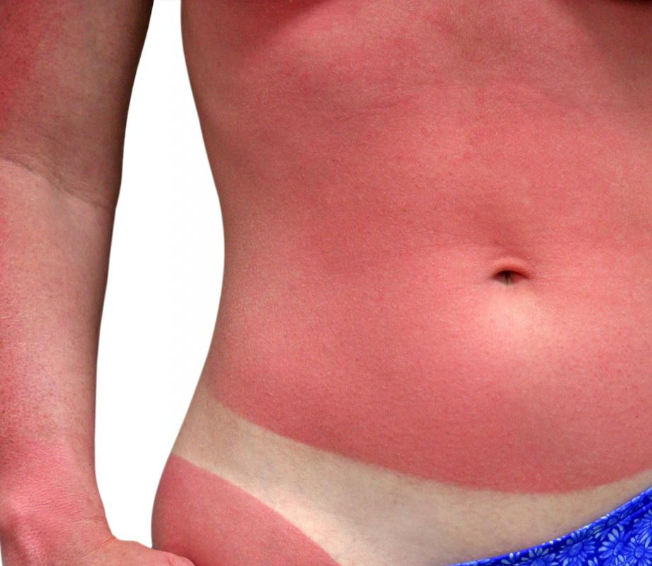 Both ibuprofen and asprin can be taken to relieve sunburn pain.