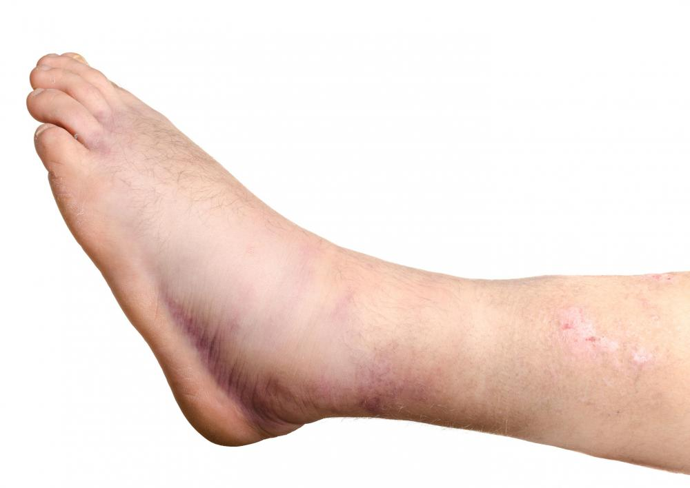 People become more susceptible to ankle sprains after the first one.