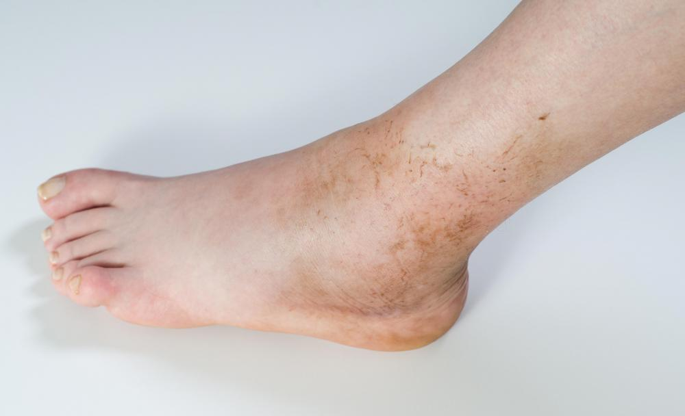 A sprained ankle may cause lower extremity edema.
