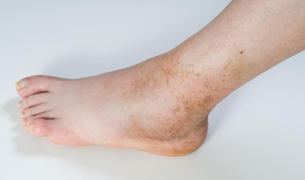 Osteomyelitis may cause swelling of the ankles and feet.