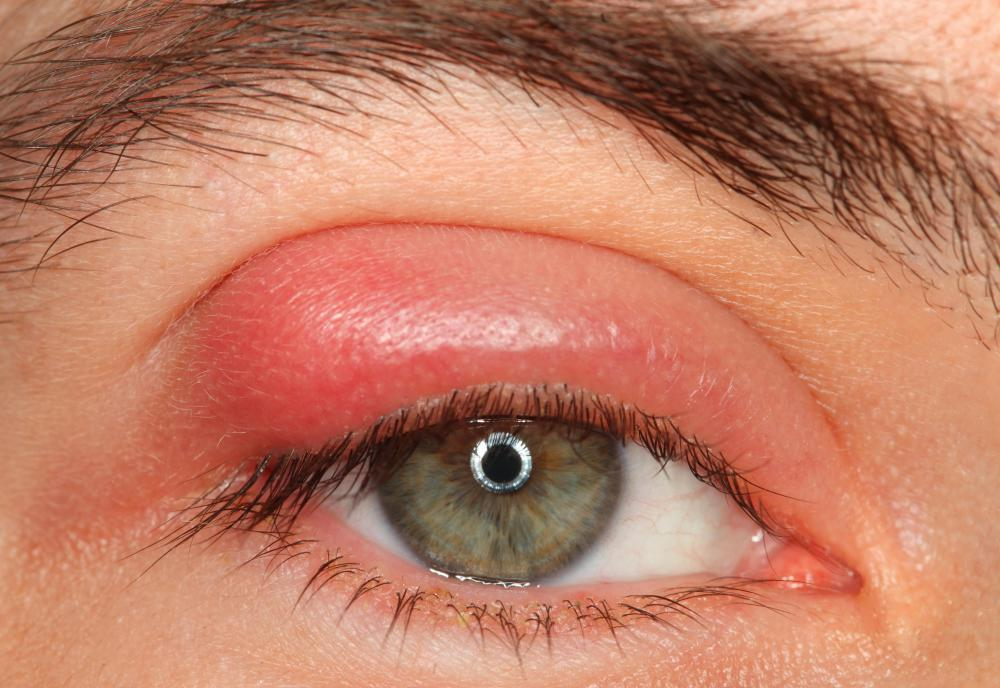 Blepharitis causes a person's eyelid to become swollen.
