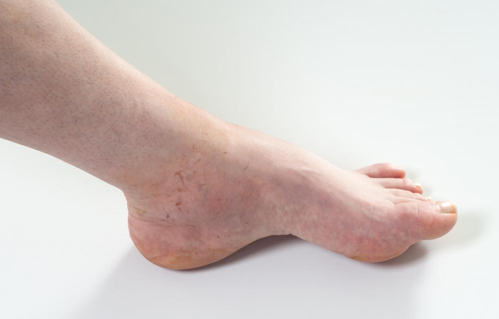 A person with a swollen ankle.