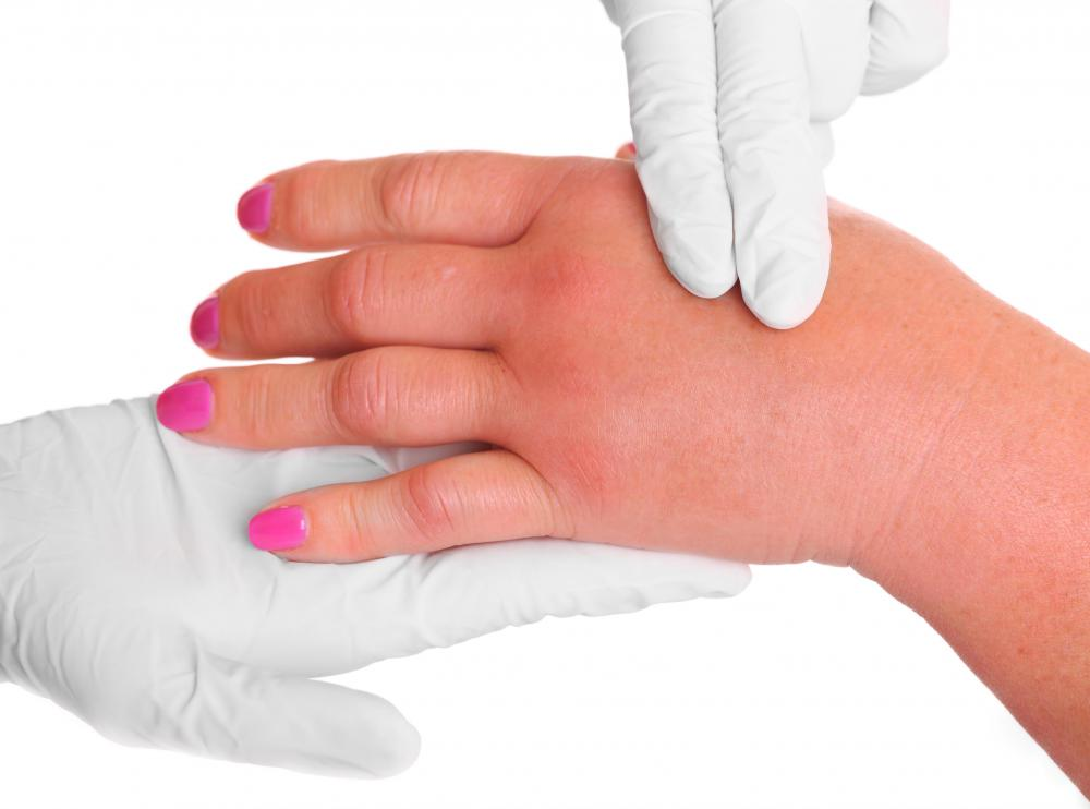 In gout of the hand, the joints of the fingers or hands become inflamed or swollen.